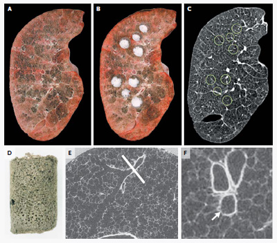 Figure 1. Lung-Tissue Samples Matched with CT Images.