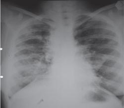 Типична рентгенография на гръден кош при муковисцидоза.