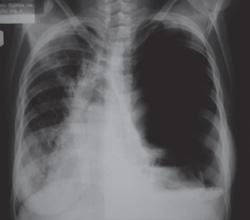 Пневмоторакс при пациентка с муковисцидоза.