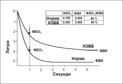 Фиг. 1. Нормална спирограма и спирограма, типична за пациенти с лека до умерена ХОББ*