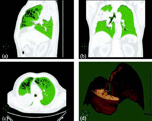 Фиг. 1. Количествен СТ при пациент с централен белодробен карцином вдясно