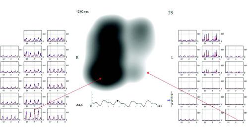 Фиг. 4. Сигнали от отделните сензори с характеристиката на вибрациите от областта, намираща се непосредствено под него