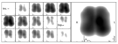 Фиг. 5. Динамични получени образи се представят в нива на сивото