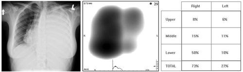 Фиг. 6. Представяне на динамичен образ и кореспондиращото му QLD измерване (за сравнение е дадена и лицевата рентгенография на същата пациентка)