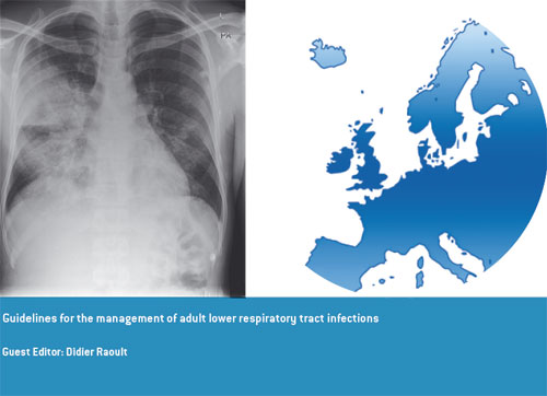 Guidelines for the management of adult lower respiratory tract infections