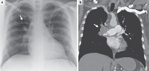 Westermark S ign in Pulmonary Embolism
