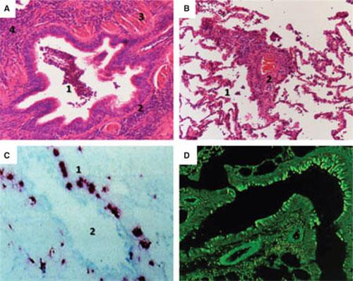 Фигура 2. Патологични промени в малките дихателни пътища и в дисталния белодробен компартмент при пациенти с бронхиална астма