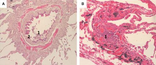 Фигура 4. Патохистологични промени в малките дихателни пътища при пациенти с ХОББ.