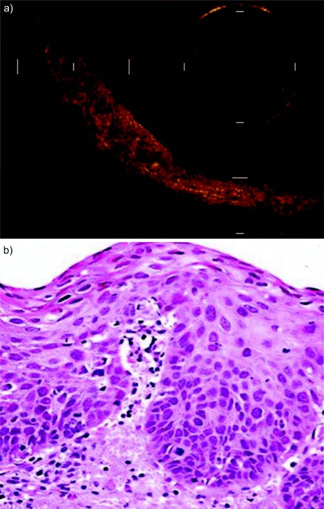 Белодробен рак - оптична кохерентна томография