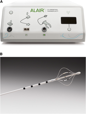 Figure 1. The Alair bronchial thermoplasty system.