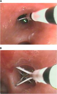 Figure 2. Bronchial thermoplasty treatment in the airways.