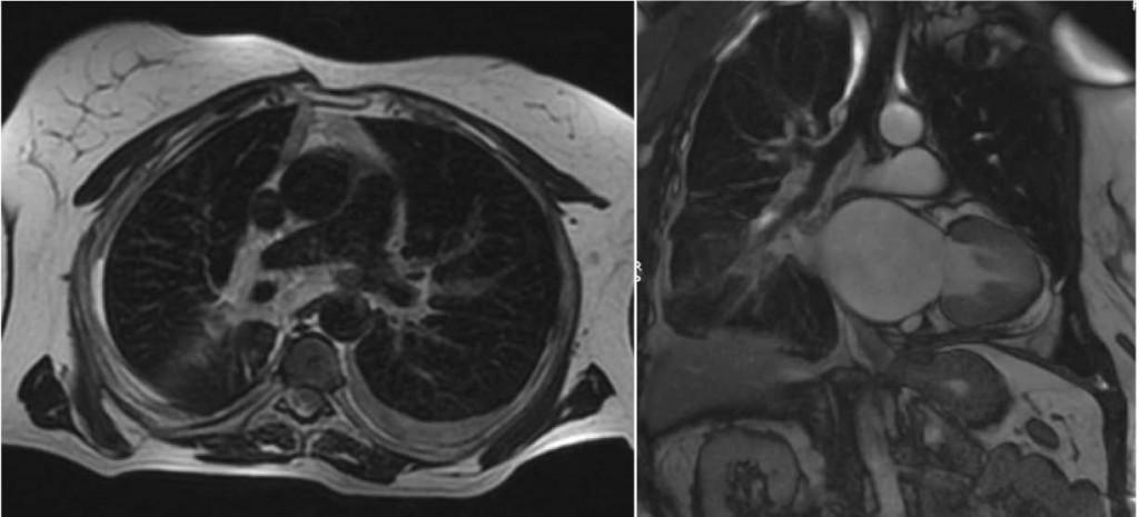 Изследване рак на белия дроб