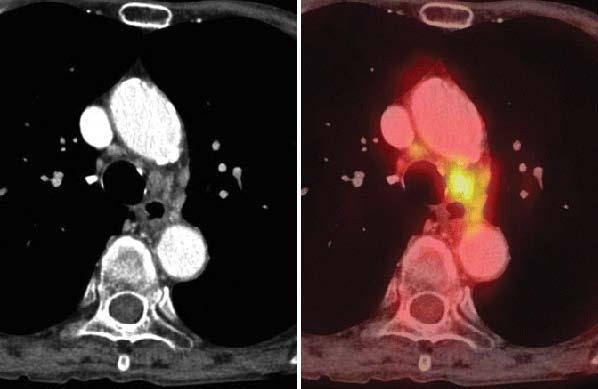 Белодробен рак - изследване