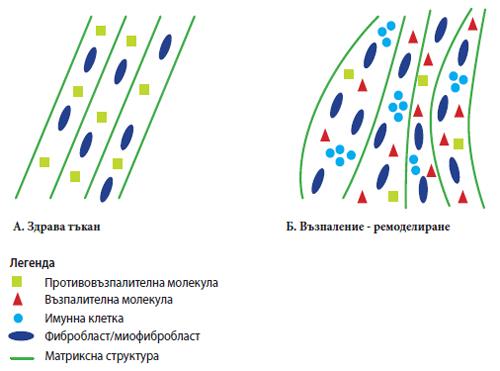 Фиг. 2. Схематично представяне на клетки, екстрацелуларен матрикс и молекули, участващи в процеса на възпаление-ремоделиране.