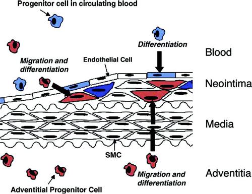 Фиг. 1. Схематично представяне на участието на прогениторни (стволови) клетки - адвентициални (червени) и произхождащи от костния мозък (сини) - в патогенезата на атеросклерозата