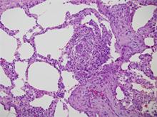 Figure 3. Asthmatic granulomatosis.