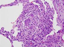Figure 4. Asthmatic granulomatosis.