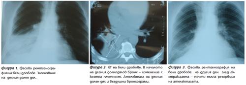 Рентгенография на бели дробове