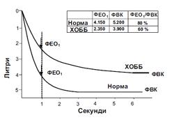 Фигура 1. Нормална спирограма и спирограма, типична за пациенти с лека до умерена ХОББ*