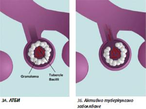 Фигура 3А и 3Б. Схематично представяне на различията между ЛТБИ и активно туберкулозно заболяване в дихателните пътища.