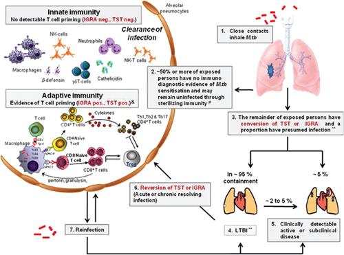Фиг. 1. Спектър на туберкулозната инфекция, жизнен цикъл на Mycobacterium tuberculosis, имунопатогенеза на белодробната туберкулоза/8/