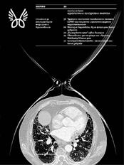 Брой № 2 (35) / април 2016, Идиопатична белодробна фиброза