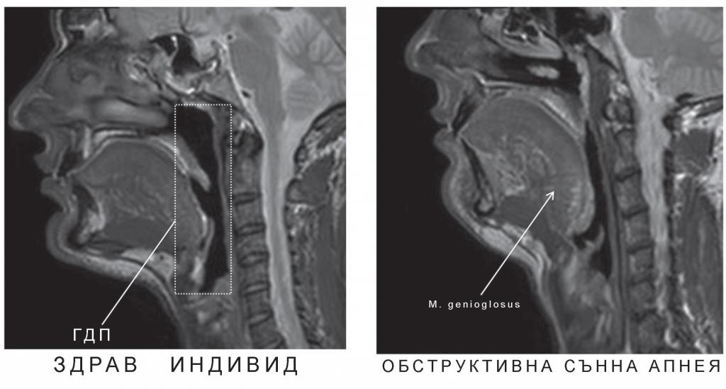 Фиг. 1. Сагитален срез от ядре- но-магнитен резонанс на 33-го- дишен мъж без ОСА с индекс на телесната маса (ИТМ) 24 кг/м2 и на 33-годишен мъж с умерено- тежка ОСА (АХИ – 17 бр./час) и ИТМ 28 кг/м2. Наблюдава се сте- снен диаметър на фаринкса при пациента с ОСА20